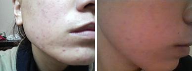 ニキビを早く治す方法を紹介!鼻の下・おでこ・眉間どこでも即効性ですぐに治す!